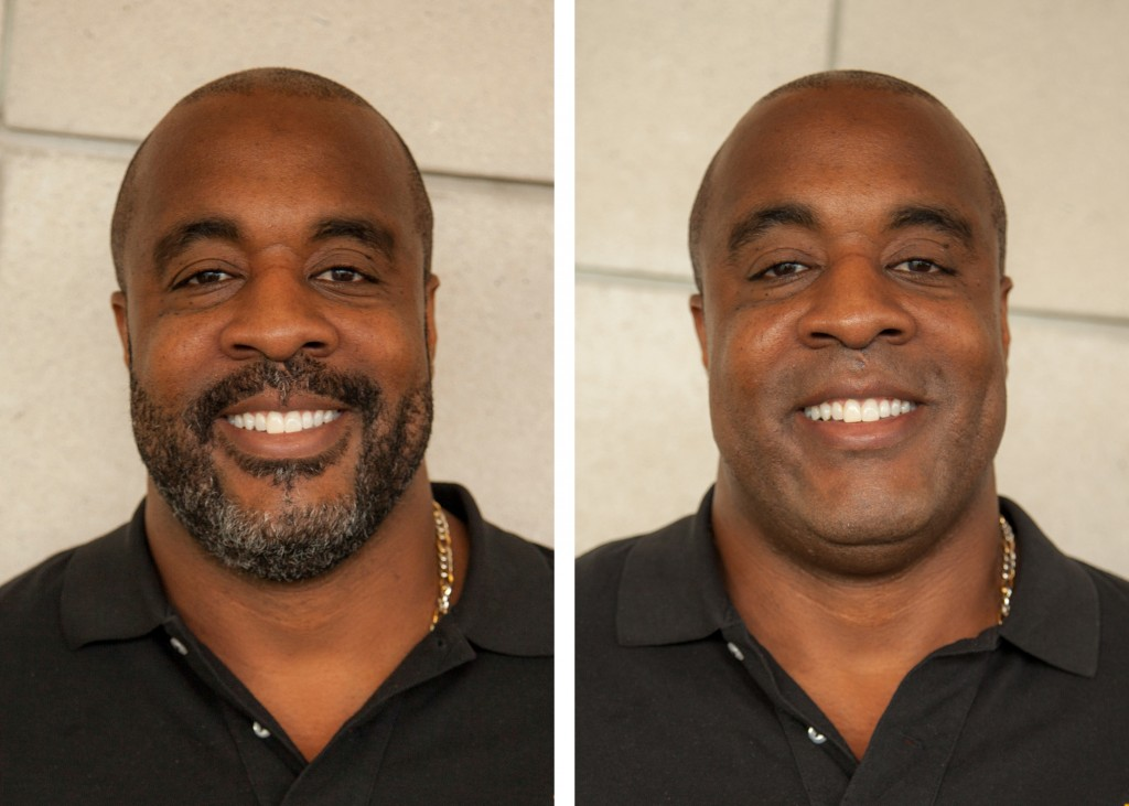 Santana Dotson before and after the shave for the Green Gold & Growing prostate cancer awareness kick-off at Froedtert & the Medical College of Wisconsin. Courtesy of Froedtert Hospital